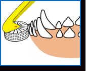 ブラシ部分が歯垢などを掻き出して